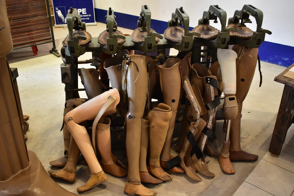 Prosthetic limbs on display at the COPE Visitor Centre